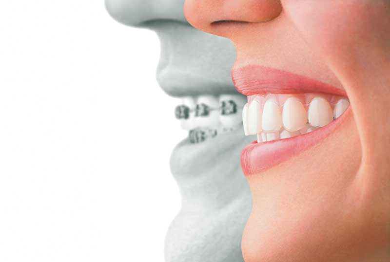 Invisalign & Dental Braces