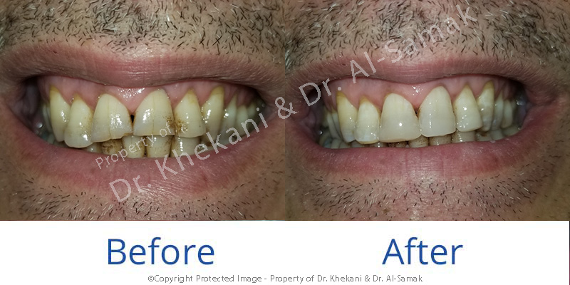 A before and after case of a composite front teeth build up