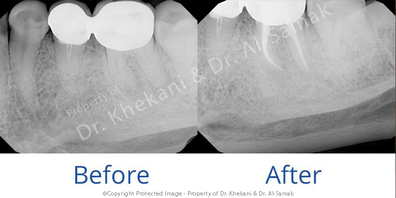 Root Canal Case Through Pre-Existing Crown